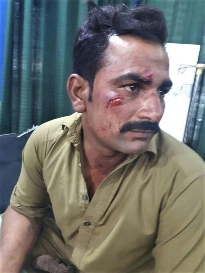 Church member Injured in Muslim attack on King Jesus Church in Burewala, Punjab Province, Pakistan. (Morning Star News)