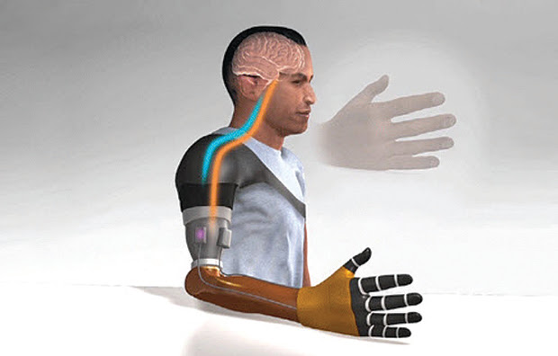 An illustration of a bionic prosthetic hand.