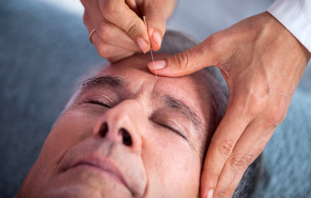 A man receiving acupuncture on his forehead.
