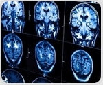 MRI and machine learning could predict whether OCD patients will benefit from treatment