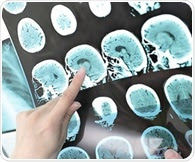Advances in brain imaging can help identify more eligible patients for stroke treatment