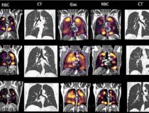 Há uma incompatibilidade na fase de imagem de gás (mostrando as concentrações do gás xenônio nas imagens de gás à esquerda), e a fase de captação de gás, onde existem inúmeras áreas onde há gás presente, mas não pode ser transferido para o sangue devido a micro- êmbolos (vistos nas imagens RBC certas).  Imagem cortesia da RSNA.