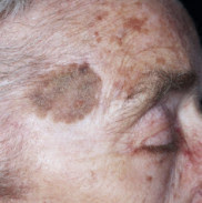 , Skin Care, LotusRain Naturopathic Clinic