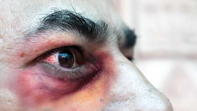 Mucormicose: Infeção rara mutila e mata doentes com Covid-19 na Índia