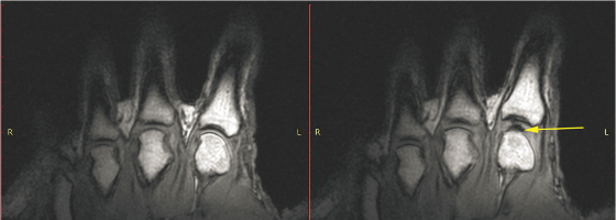 Hand before and after knuckle cracking. Credit: Kawchuk GN, Fryer J, Jaremko JL, Zeng H, Rowe L, Thompson R, PLOS ONE