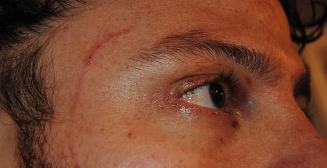 Así quedó el ojo de Iván, en una imagen tomada tras su salida de los calabozos de Plaza de Castilla, Madrid.