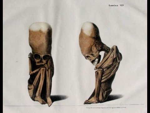 "EVIDENCE! ""Human"" Fetus With Elongated Skull Found In Bolivia!  Hqdefault"